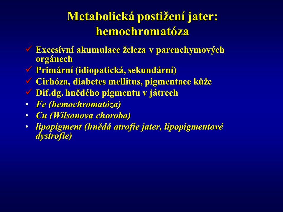 Metabolická postižení jater: hemochromatóza Excesívní akumulace železa v parenchymových orgánech Excesívní akumulace železa v parenchymových orgánech Primární (idiopatická, sekundární) Primární (idiopatická, sekundární) Cirhóza, diabetes mellitus, pigmentace kůže Cirhóza, diabetes mellitus, pigmentace kůže Dif.dg.
