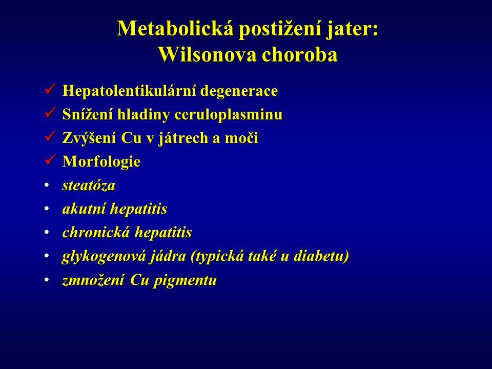 Metabolická postižení jater: Wilsonova choroba Hepatolentikulární degenerace Hepatolentikulární degenerace Snížení hladiny ceruloplasminu Snížení hladiny ceruloplasminu Zvýšení Cu v játrech a moči Zvýšení Cu v játrech a moči Morfologie Morfologie steatózasteatóza akutní hepatitisakutní hepatitis chronická hepatitischronická hepatitis glykogenová jádra (typická také u diabetu)glykogenová jádra (typická také u diabetu) zmnožení Cu pigmentuzmnožení Cu pigmentu