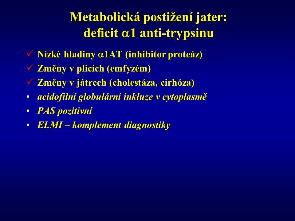 Metabolická postižení jater: deficit  1 anti-trypsinu Nízké hladiny  1AT (inhibitor proteáz) Nízké hladiny  1AT (inhibitor proteáz) Změny v plicích (emfyzém) Změny v plicích (emfyzém) Změny v játrech (cholestáza, cirhóza) Změny v játrech (cholestáza, cirhóza) acidofilní globulární inkluze v cytoplasměacidofilní globulární inkluze v cytoplasmě PAS pozitivníPAS pozitivní ELMI – komplement diagnostikyELMI – komplement diagnostiky