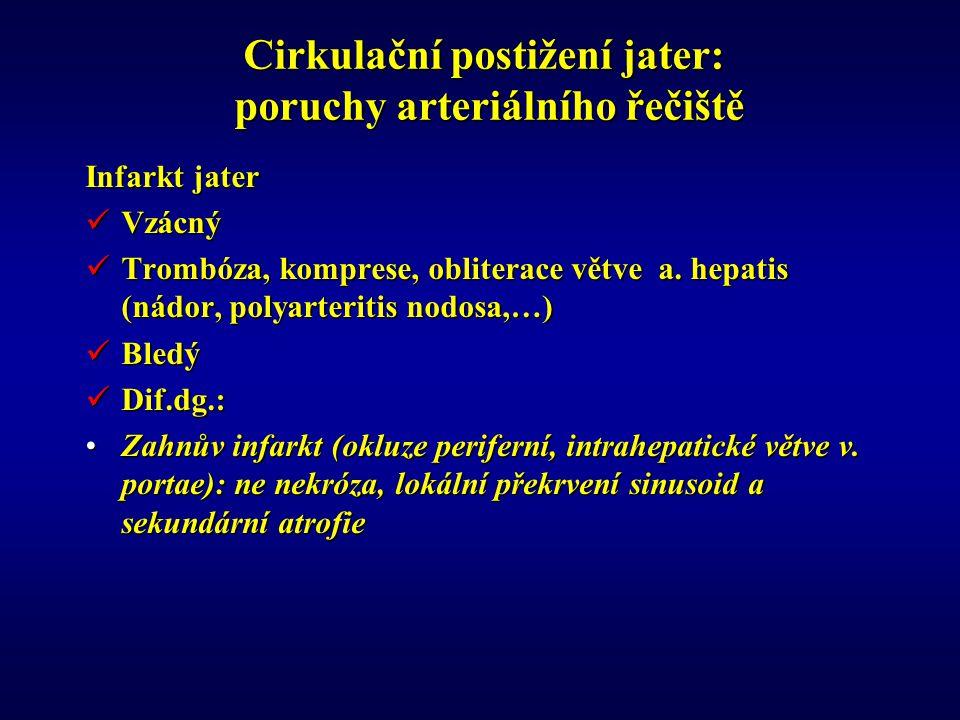 Cirkulační postižení jater: poruchy arteriálního řečiště Infarkt jater Vzácný Vzácný Trombóza, komprese, obliterace větve a.