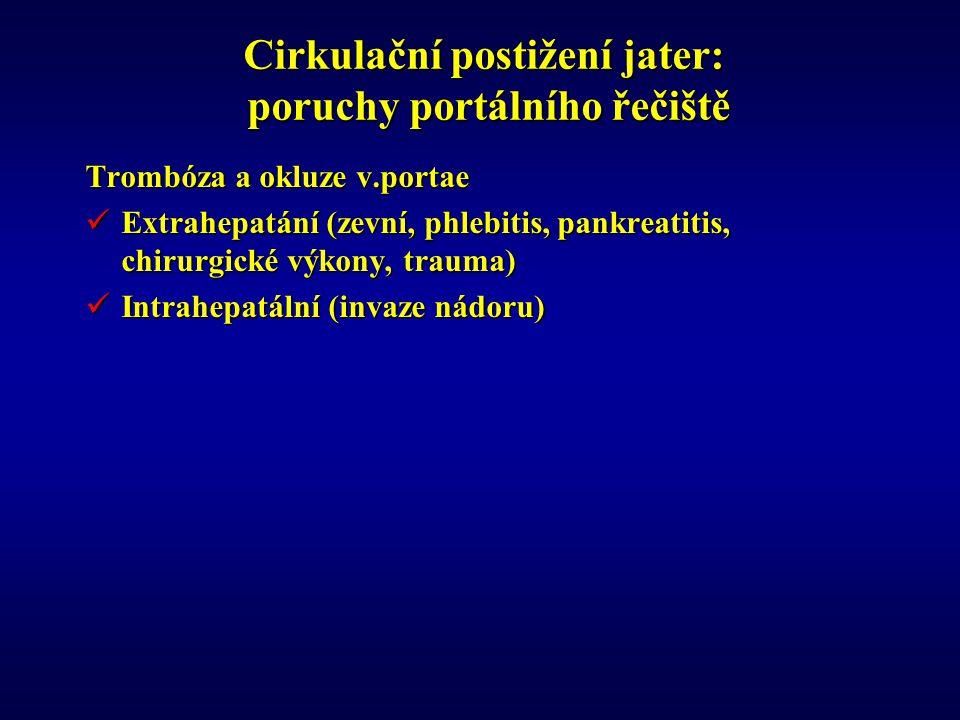 Cirkulační postižení jater: poruchy portálního řečiště Trombóza a okluze v.portae Extrahepatání (zevní, phlebitis, pankreatitis, chirurgické výkony, trauma) Extrahepatání (zevní, phlebitis, pankreatitis, chirurgické výkony, trauma) Intrahepatální (invaze nádoru) Intrahepatální (invaze nádoru)