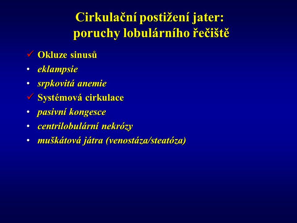 Cirkulační postižení jater: poruchy lobulárního řečiště Okluze sinusů Okluze sinusů eklampsieeklampsie srpkovitá anemiesrpkovitá anemie Systémová cirkulace Systémová cirkulace pasivní kongescepasivní kongesce centrilobulární nekrózycentrilobulární nekrózy muškátová játra (venostáza/steatóza)muškátová játra (venostáza/steatóza)