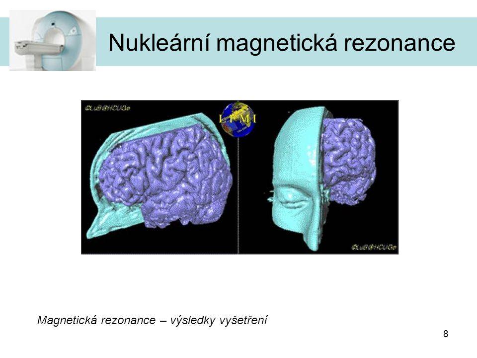 8 Magnetická rezonance – výsledky vyšetření