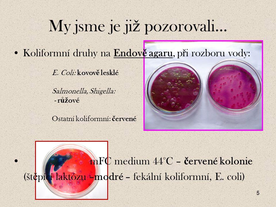 16 Pokud ji ž tedy víme, ž e pracujeme s G- bu ň kou, která je navíc kataláza pozitivní a pod parafínem v OF testu m ě la pozitivní ž lutou reakci, bude to tedy fermentující enterobakterie.