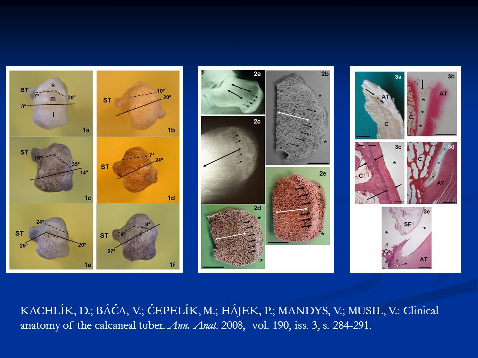 KACHLÍK, D.; BÁČA, V.; ČEPELÍK, M.; HÁJEK, P.; MANDYS, V.; MUSIL, V.: Clinical anatomy of the calcaneal tuber. Ann. Anat. 2008, vol. 190, iss. 3, s. 2