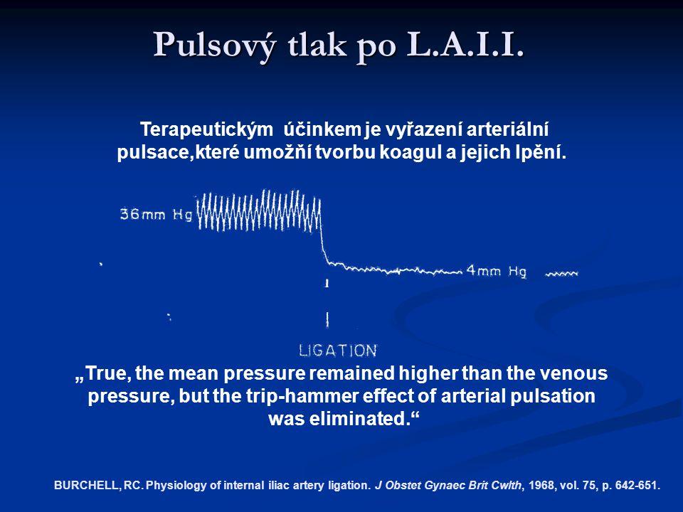 Pulsový tlak po L.A.I.I.