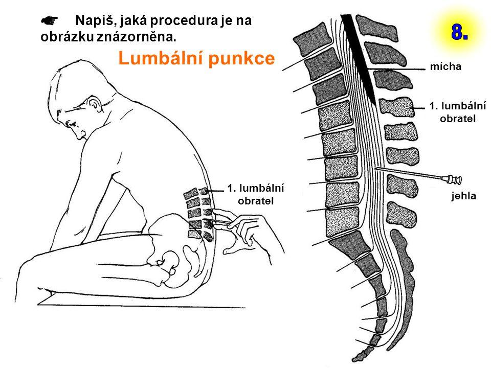 1. lumbální obratel mícha jehla Napiš, jaká procedura je na obrázku znázorněna. Lumbální punkce
