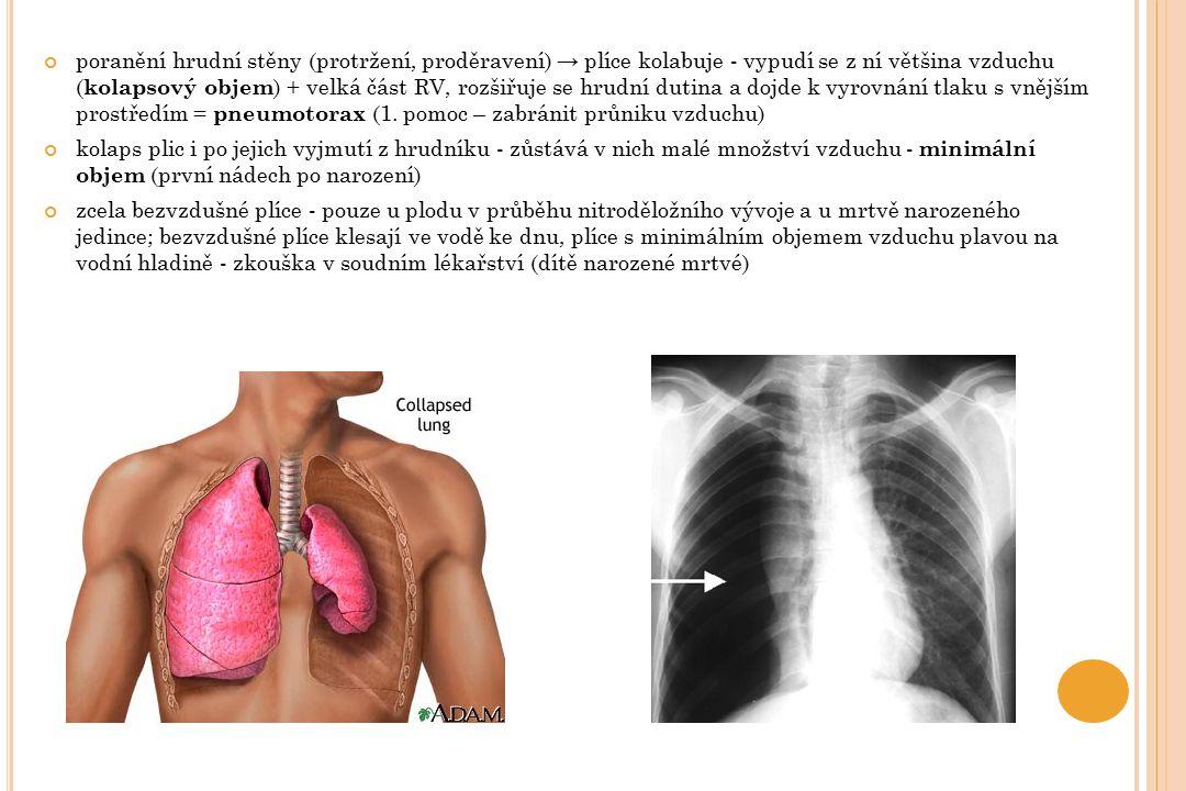 poranění hrudní stěny (protržení, proděravení) → plíce kolabuje - vypudí se z ní většina vzduchu ( kolapsový objem ) + velká část RV, rozšiřuje se hru