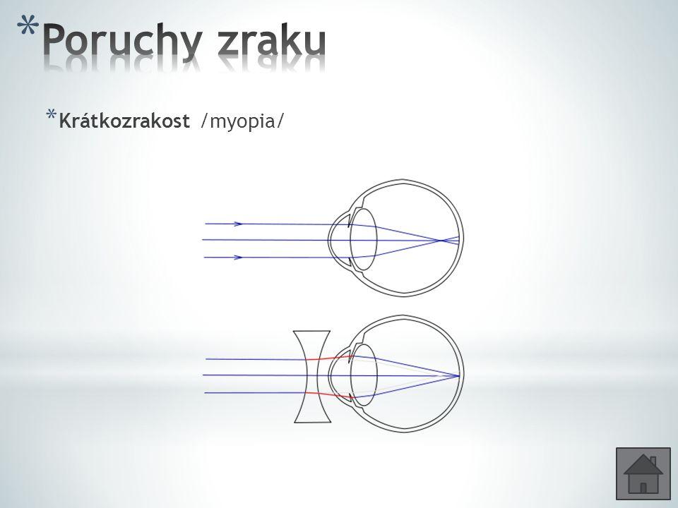 * Krátkozrakost /myopia/