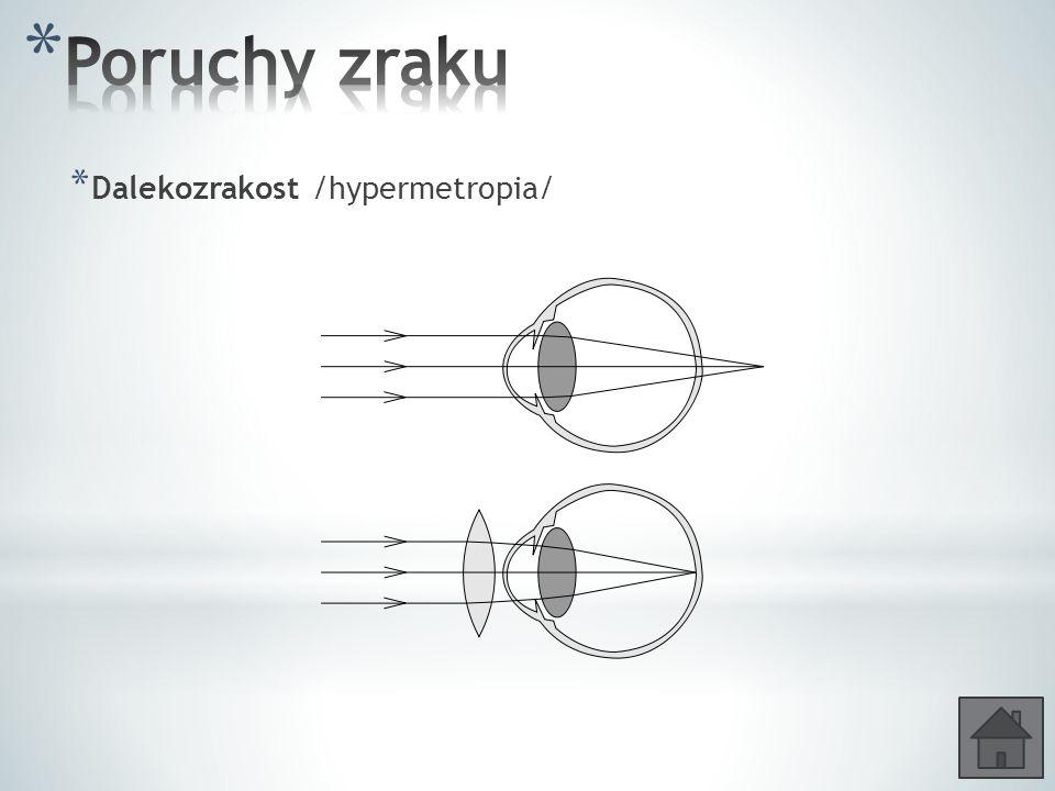 * Dalekozrakost /hypermetropia/