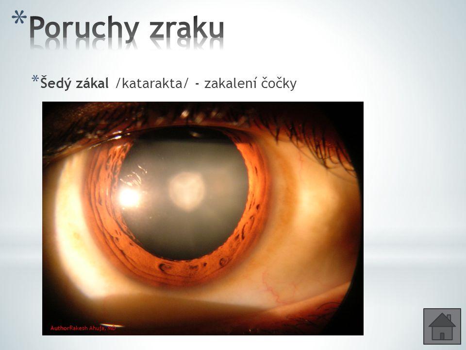 * Šedý zákal /katarakta/ - zakalení čočky AuthorRakesh Ahuja, MD