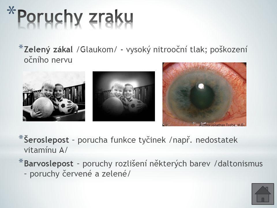 * Zelený zákal /Glaukom/ - vysoký nitrooční tlak; poškození očního nervu * Šeroslepost – porucha funkce tyčinek /např. nedostatek vitamínu A/ * Barvos