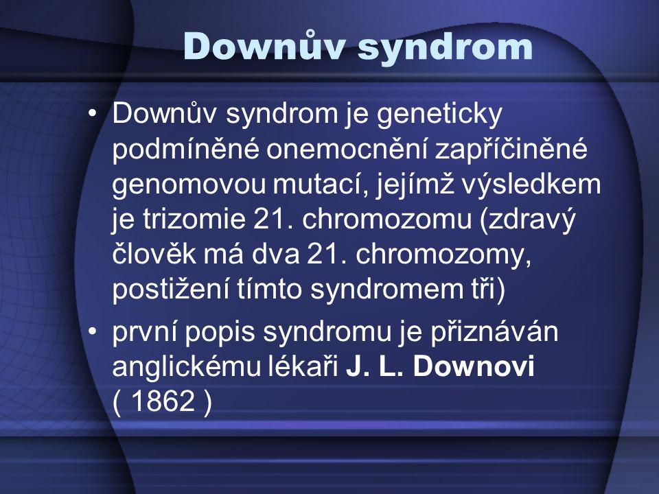 Downův syndrom Downův syndrom je geneticky podmíněné onemocnění zapříčiněné genomovou mutací, jejímž výsledkem je trizomie 21. chromozomu (zdravý člov