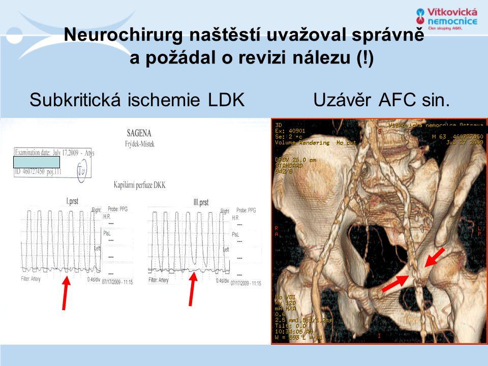 Neurochirurg naštěstí uvažoval správně a požádal o revizi nálezu (!) Subkritická ischemie LDK Uzávěr AFC sin.