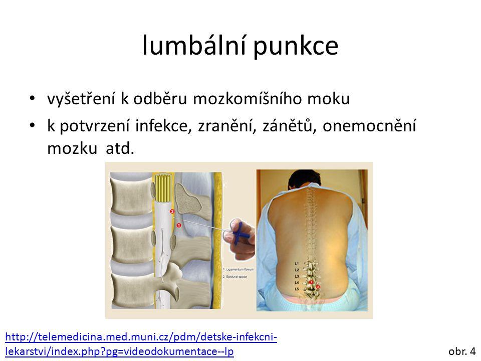 lumbální punkce vyšetření k odběru mozkomíšního moku k potvrzení infekce, zranění, zánětů, onemocnění mozku atd. obr. 4 http://telemedicina.med.muni.c