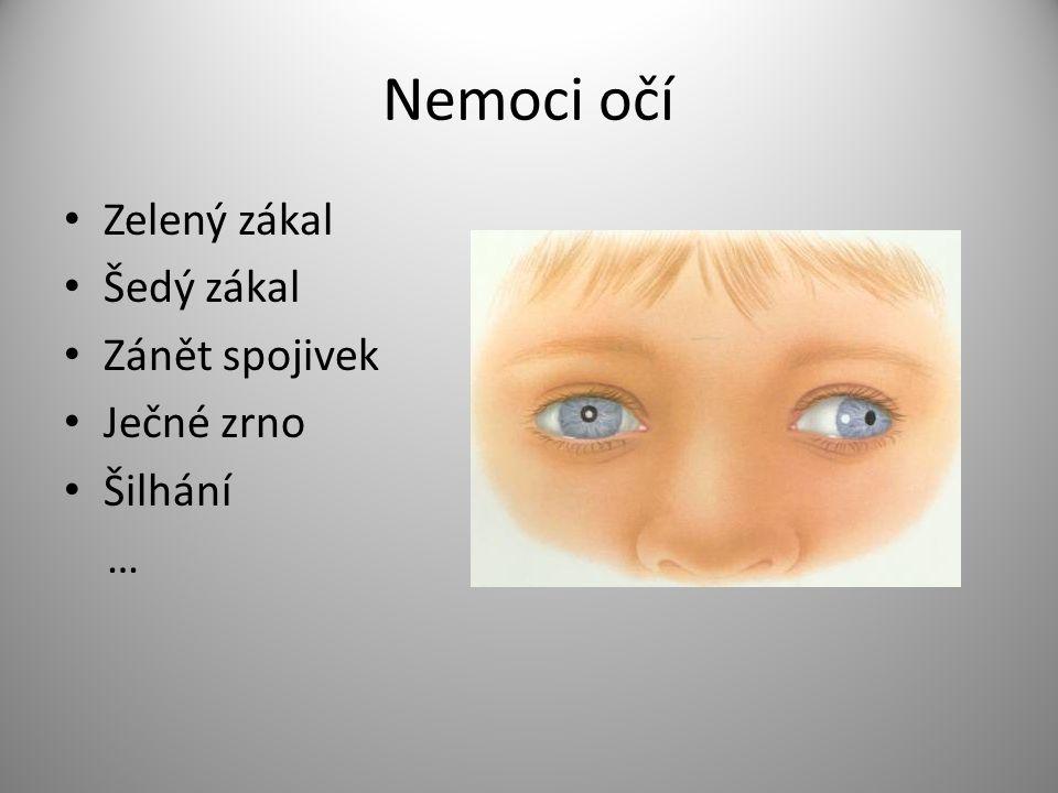 Zdroje http://www.odmaturuj.cz/biologie/oko-2/ http://www.lidske-smysly.wbs.cz/Zrak.html http://www.kntb.cz/strabologicka-a-detska- ambulance http://www.kntb.cz/strabologicka-a-detska- ambulance