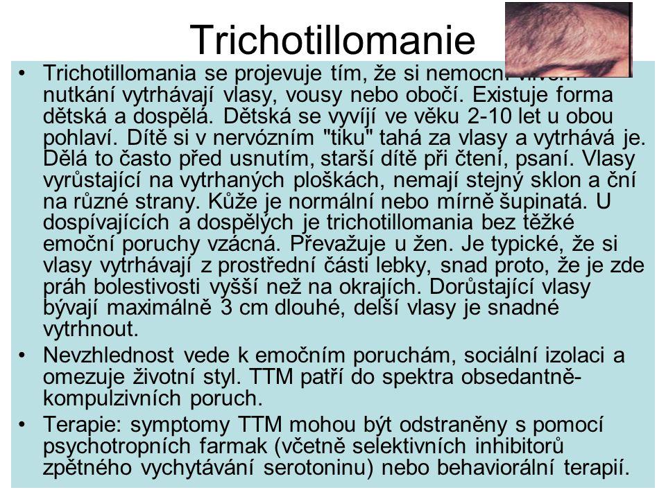Trichotillomanie Trichotillomania se projevuje tím, že si nemocní vlivem nutkání vytrhávají vlasy, vousy nebo obočí.