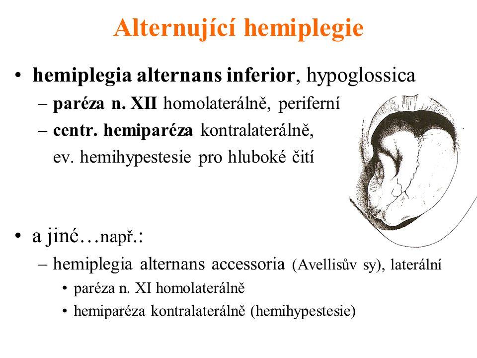 Alternující hemiplegie hemiplegia alternans inferior, hypoglossica –paréza n. XII homolaterálně, periferní –centr. hemiparéza kontralaterálně, ev. hem