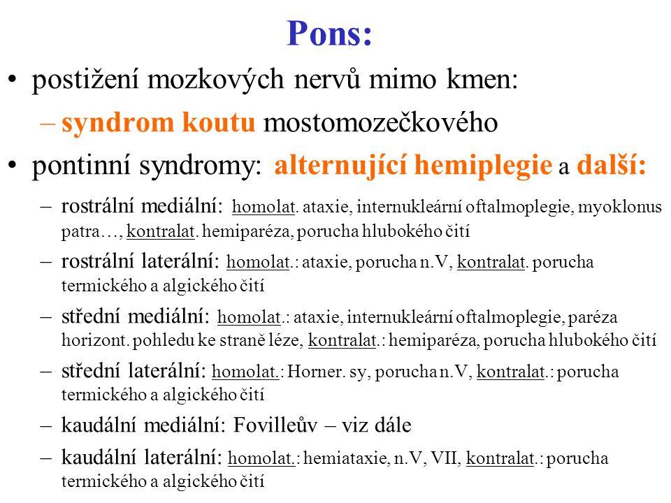 Pons: postižení mozkových nervů mimo kmen: –syndrom koutu mostomozečkového pontinní syndromy: alternující hemiplegie a další: –rostrální mediální: homolat.