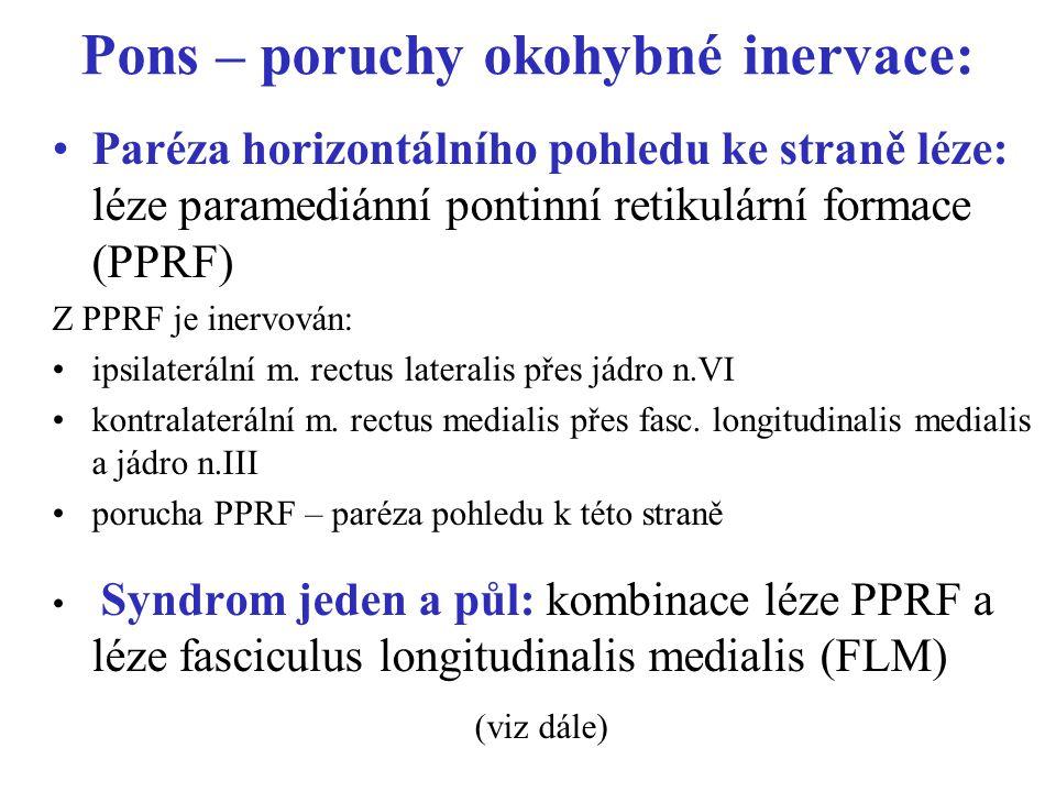 Pons – poruchy okohybné inervace: Paréza horizontálního pohledu ke straně léze: léze paramediánní pontinní retikulární formace (PPRF) Z PPRF je inervován: ipsilaterální m.