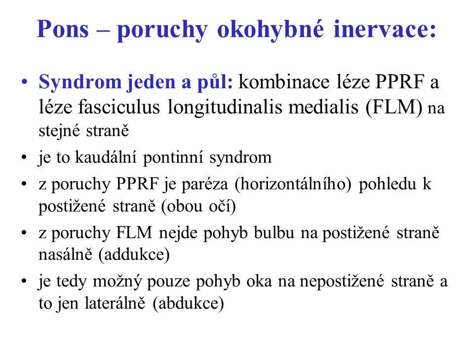 Pons – poruchy okohybné inervace: Syndrom jeden a půl: kombinace léze PPRF a léze fasciculus longitudinalis medialis (FLM) na stejné straně je to kaudální pontinní syndrom z poruchy PPRF je paréza (horizontálního) pohledu k postižené straně (obou očí) z poruchy FLM nejde pohyb bulbu na postižené straně nasálně (addukce) je tedy možný pouze pohyb oka na nepostižené straně a to jen laterálně (abdukce)