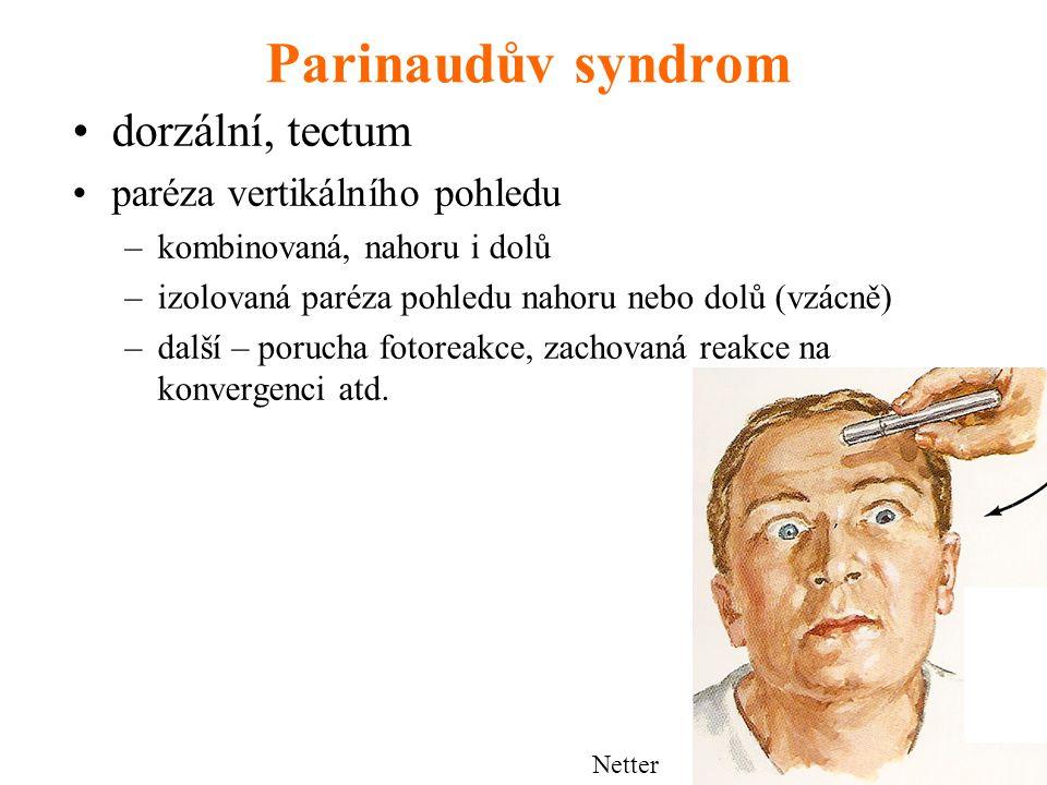 Parinaudův syndrom dorzální, tectum paréza vertikálního pohledu –kombinovaná, nahoru i dolů –izolovaná paréza pohledu nahoru nebo dolů (vzácně) –další – porucha fotoreakce, zachovaná reakce na konvergenci atd.