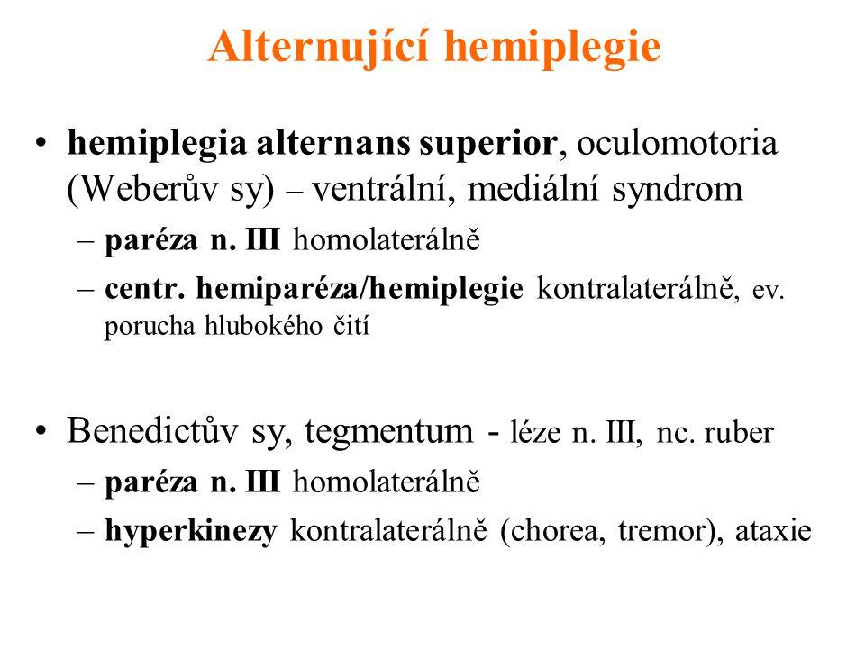 Alternující hemiplegie hemiplegia alternans superior, oculomotoria (Weberův sy) – ventrální, mediální syndrom –paréza n. III homolaterálně –centr. hem