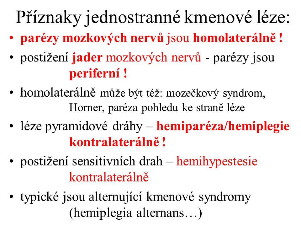 Příznaky jednostranné kmenové léze: parézy mozkových nervů jsou homolaterálně ! postižení jader mozkových nervů - parézy jsou periferní ! homolateráln