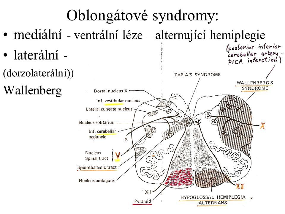 Oblongátové syndromy: mediální - ventrální léze – alternující hemiplegie laterální - (dorzolaterální)) Wallenberg