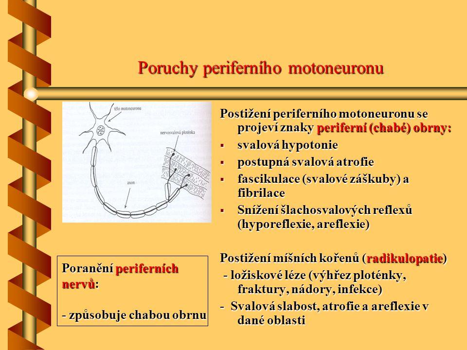 Poruchy periferního motoneuronu periferní (chabé) obrny: Postižení periferního motoneuronu se projeví znaky periferní (chabé) obrny:  svalová hypoton