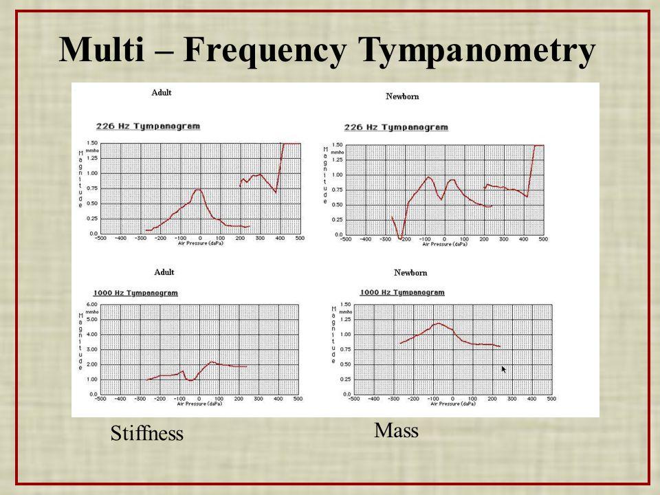 Multi – Frequency Tympanometry Stiffness Mass