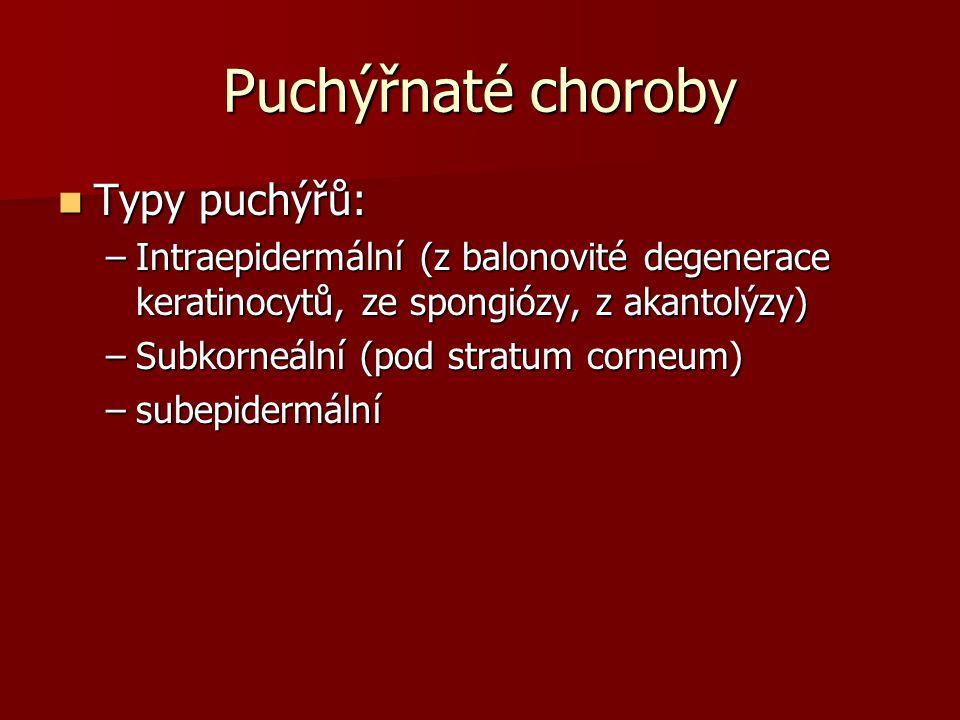 Puchýřnaté choroby Typy puchýřů: Typy puchýřů: –Intraepidermální (z balonovité degenerace keratinocytů, ze spongiózy, z akantolýzy) –Subkorneální (pod stratum corneum) –subepidermální
