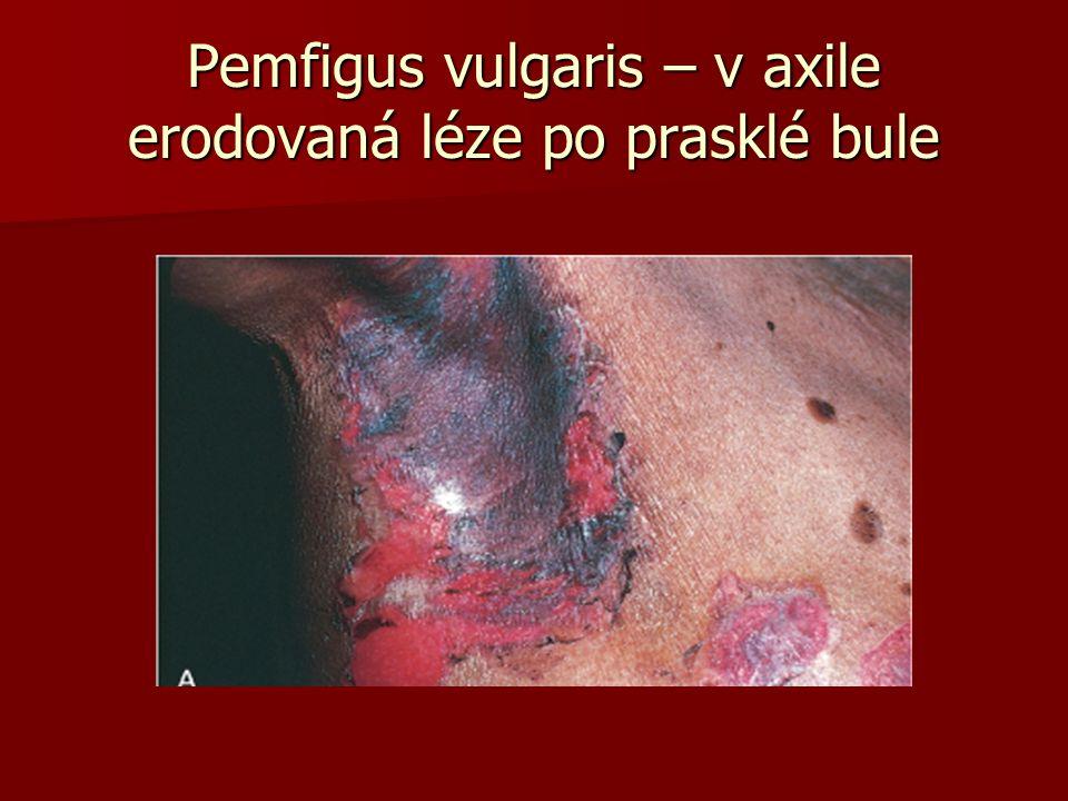 Pemfigus vulgaris – v axile erodovaná léze po prasklé bule
