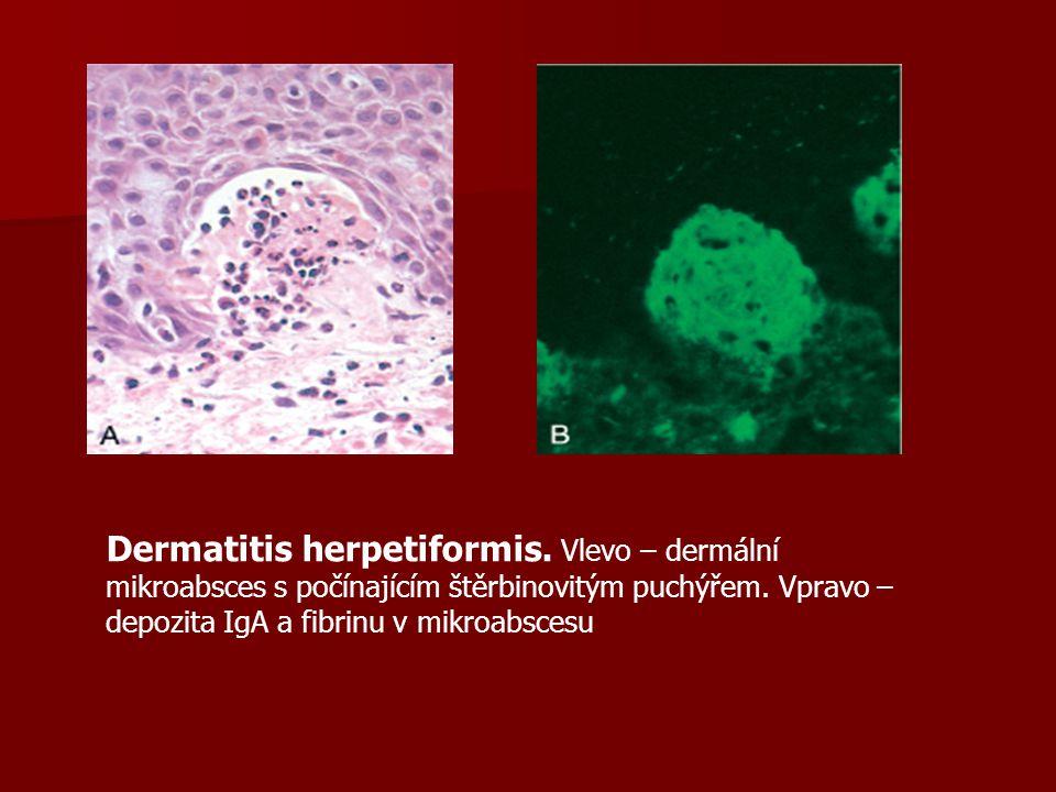 Dermatitis herpetiformis.Vlevo – dermální mikroabsces s počínajícím štěrbinovitým puchýřem.
