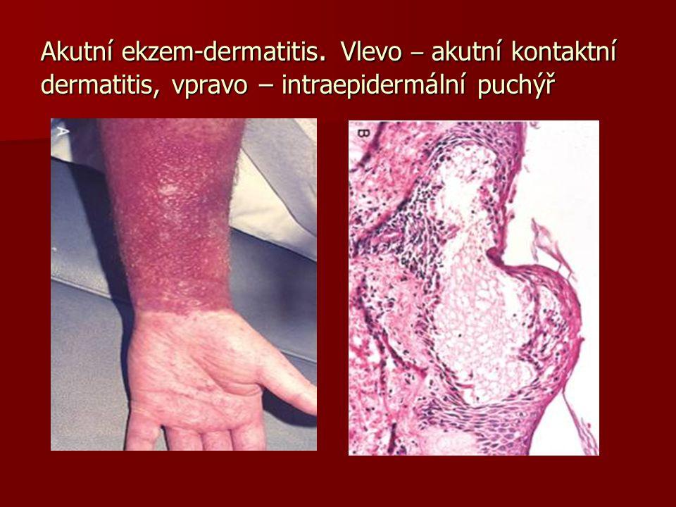 Akutní ekzem-dermatitis. Vlevo – akutní kontaktní dermatitis, vpravo – intraepidermální puchýř