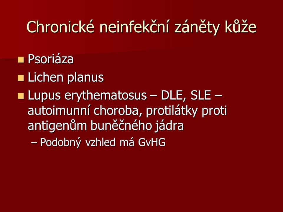 Chronické neinfekční záněty kůže Psoriáza Psoriáza Lichen planus Lichen planus Lupus erythematosus – DLE, SLE – autoimunní choroba, protilátky proti antigenům buněčného jádra Lupus erythematosus – DLE, SLE – autoimunní choroba, protilátky proti antigenům buněčného jádra –Podobný vzhled má GvHG