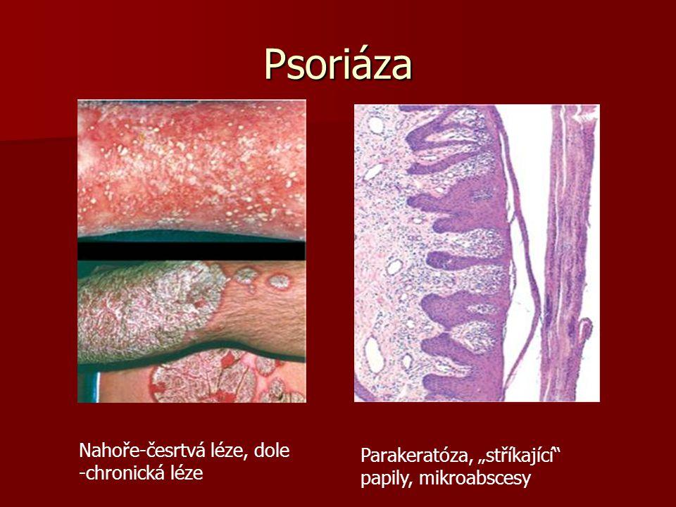 """Psoriáza Nahoře-česrtvá léze, dole -chronická léze Parakeratóza, """"stříkající papily, mikroabscesy"""