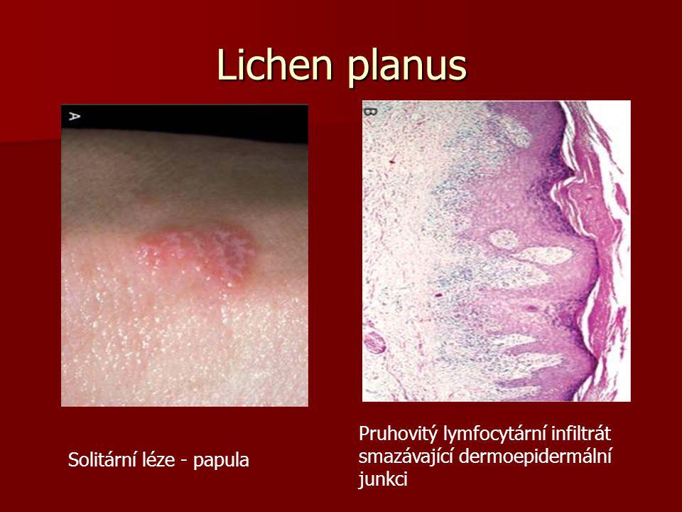 Lichen planus Solitární léze - papula Pruhovitý lymfocytární infiltrát smazávající dermoepidermální junkci