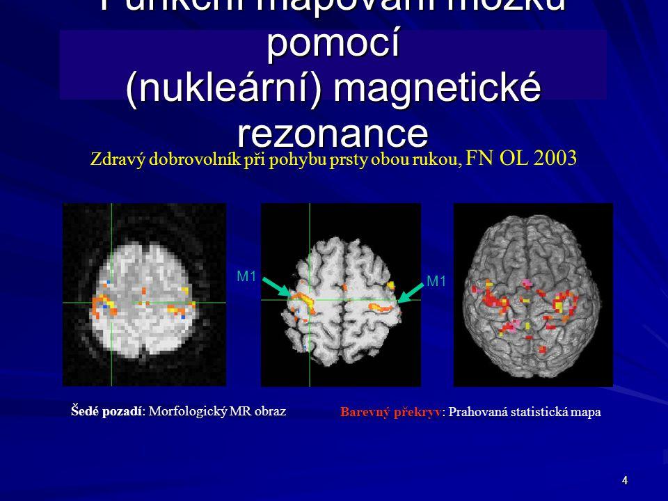 4 Funkční mapování mozku pomocí (nukleární) magnetické rezonance Zdravý dobrovolník při pohybu prsty obou rukou, FN OL 2003 M1 Šedé pozadí: Morfologický MR obraz Barevný překryv: Prahovaná statistická mapa