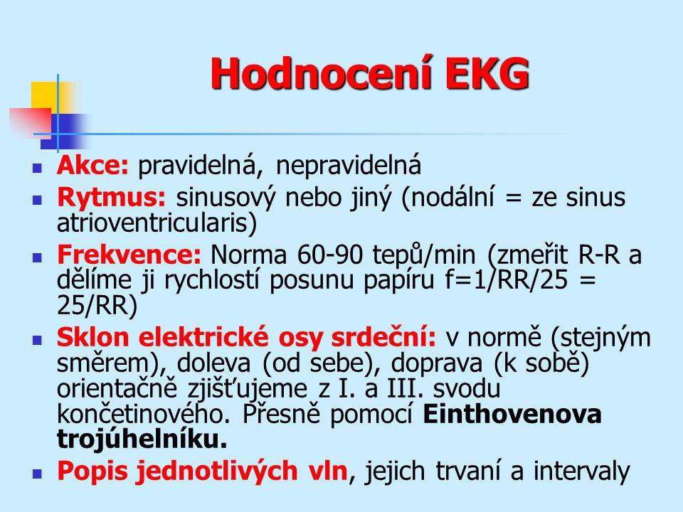 Hodnocení EKG Akce: pravidelná, nepravidelná Rytmus: sinusový nebo jiný (nodální = ze sinus atrioventricularis) Frekvence: Norma 60-90 tepů/min (zmeři