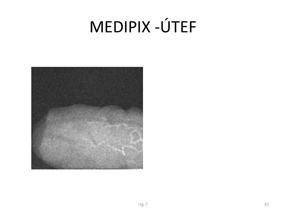 MEDIPIX -ÚTEF rtg-741