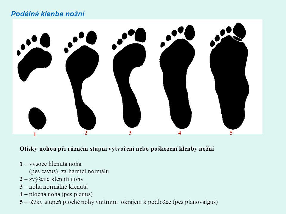 Podélná klenba nožní 1 2345 Otisky nohou při různém stupni vytvoření nebo poškození klenby nožní 1 – vysoce klenutá noha (pes cavus), za harnicí normálu 2 – zvýšené klenutí nohy 3 – noha normálně klenutá 4 – plochá noha (pes planus) 5 – těžký stupeň ploché nohy vnitřním okrajem k podložce (pes planovalgus)