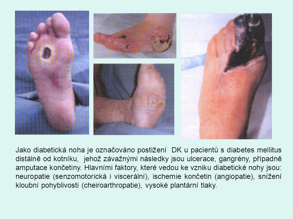Jako diabetická noha je označováno postižení DK u pacientů s diabetes mellitus distálně od kotníku, jehož závažnými následky jsou ulcerace, gangrény, případně amputace končetiny.