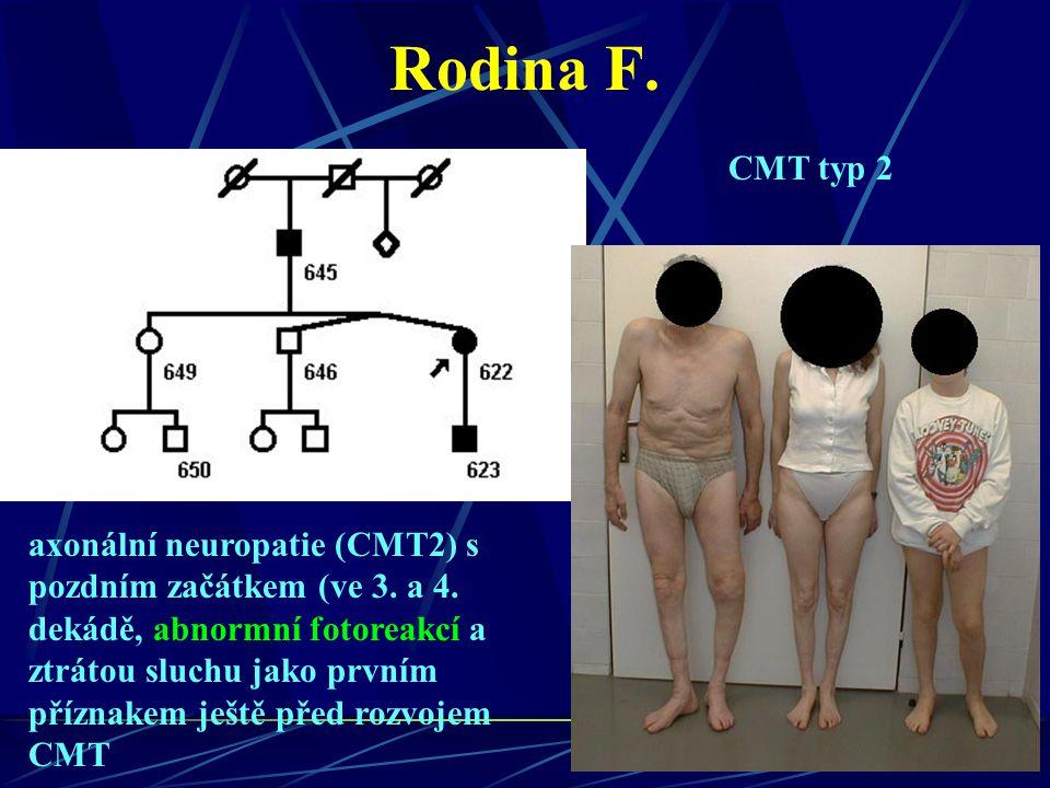 Rodina F. axonální neuropatie (CMT2) s pozdním začátkem (ve 3. a 4. dekádě, abnormní fotoreakcí a ztrátou sluchu jako prvním příznakem ještě před rozv