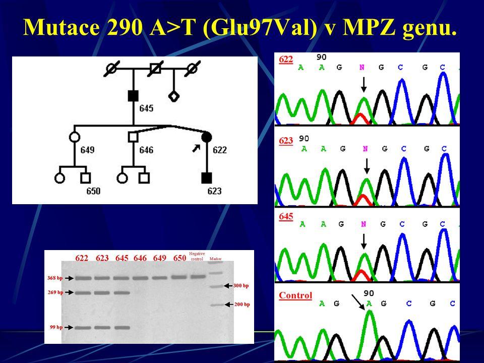 Mutace 290 A>T (Glu97Val) v MPZ genu.