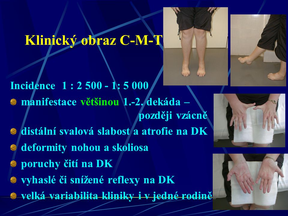 Jak se CMT projevuje Obvyklé postižení svalů přední strany bérce – peroneálních svalů – přepadávání špičky nohy - zakopávání vázne či není možná chůze po patách