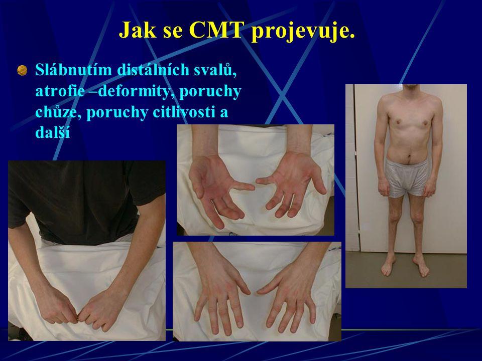 Jak se CMT projevuje. Slábnutím distálních svalů, atrofie –deformity, poruchy chůze, poruchy citlivosti a další