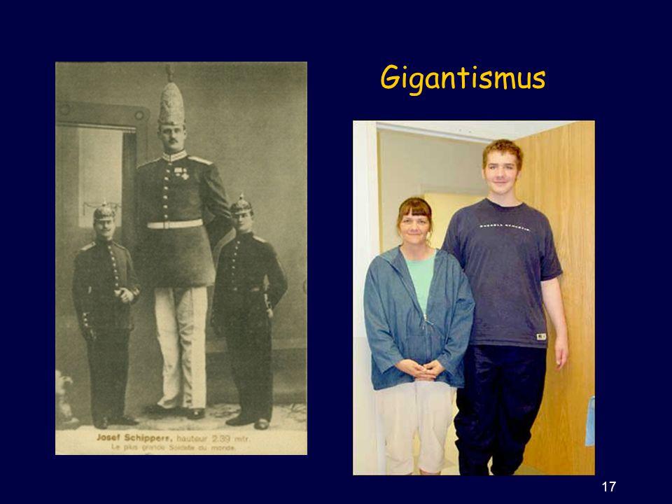 Gigantismus 17