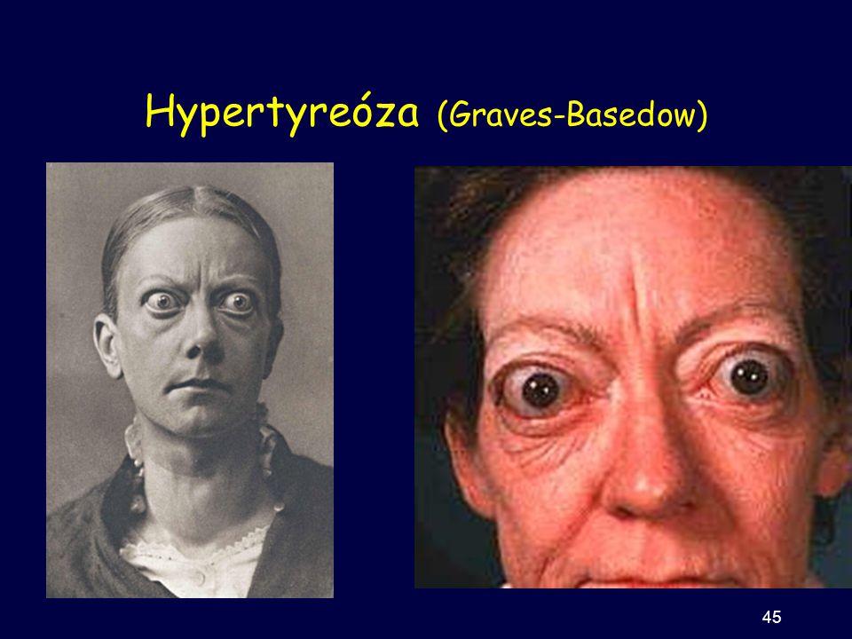 Hypertyreóza (Graves-Basedow) 45