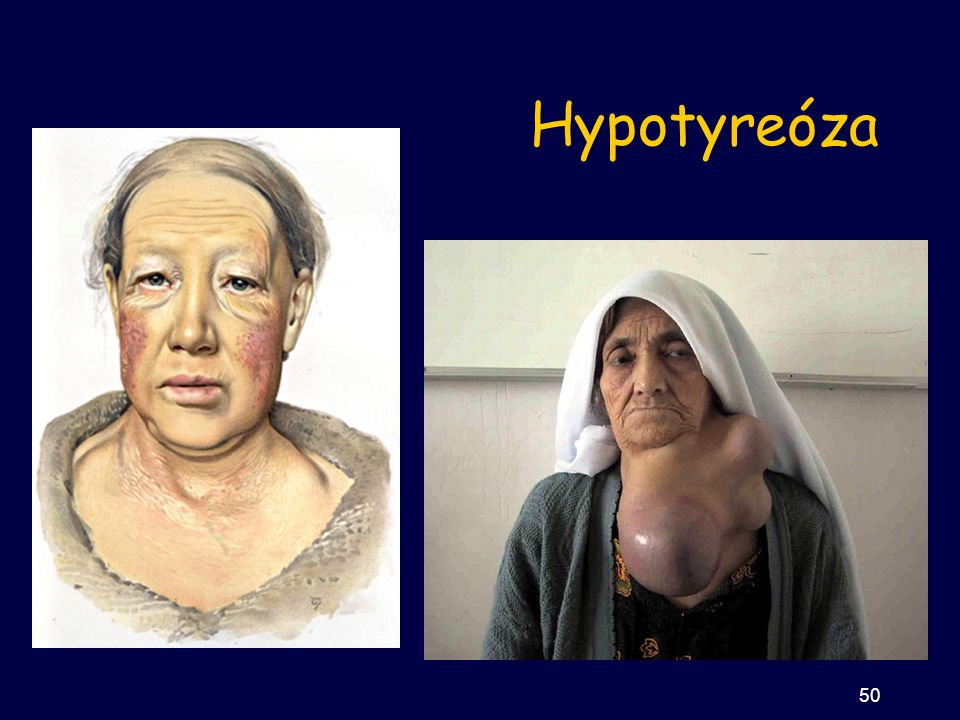 Hypotyreóza 50